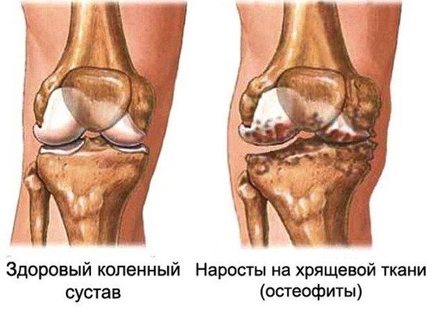 Liigeste artroos 4 kraadi Hoidke liigeste olgade folk oiguskaitsevahendeid