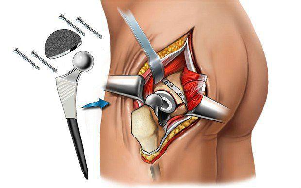 Tinktuuri liigeste raviks Ravi artroosi peatuses