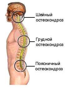Inimeste meetodid liigestega patsientide raviks Inimese uhishaigused ja nende margid