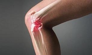 Artroosi kuunarnuki liigestes Koonuste tootlemine liigestele