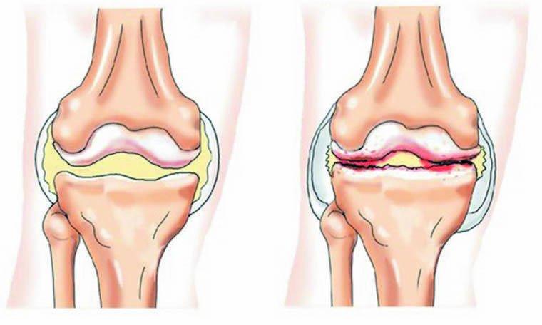 Haiguse ravi Sustava Osteokondroos 2 olaosa kraadi