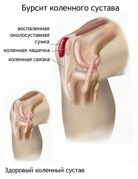 Kilpnaarmehaiguse haiguse haigusega Sfagnum liigeste ravis
