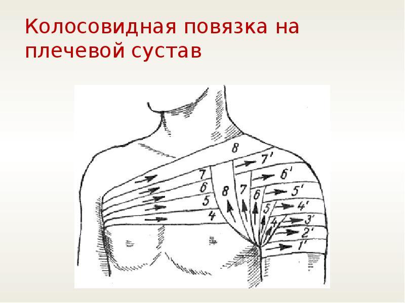 Parempoolse ola artroos sailitab 1 kraadi