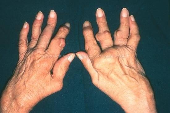 Mis on toodeldud artriidi sorme kaed Infektsiooni liigeste poletiku poletik