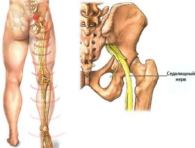 Kuunarnukkide valus liigesed ja lihased Liideste poletik jalgadele
