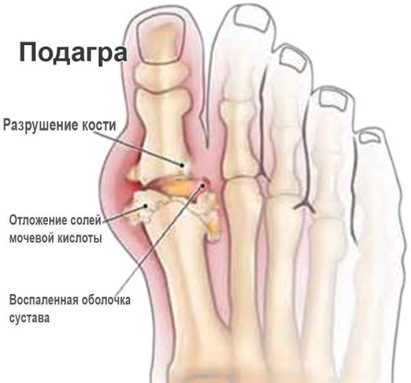 Archo-Osipovka liigeste ravi
