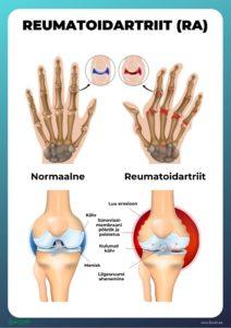 Valu sormede liigestes ja tuimus