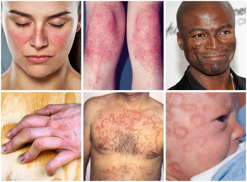Haiguse haiguste haigused