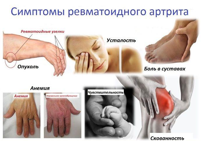 Haigused kuunarnuki liigeste kaed bursit Juhtide ravi Poolas