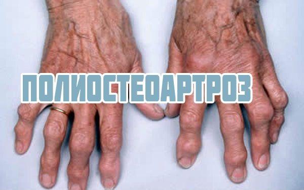 Sulamine valu liigestes Arthroosi ravi Stop Folk oiguskaitsevahendeid