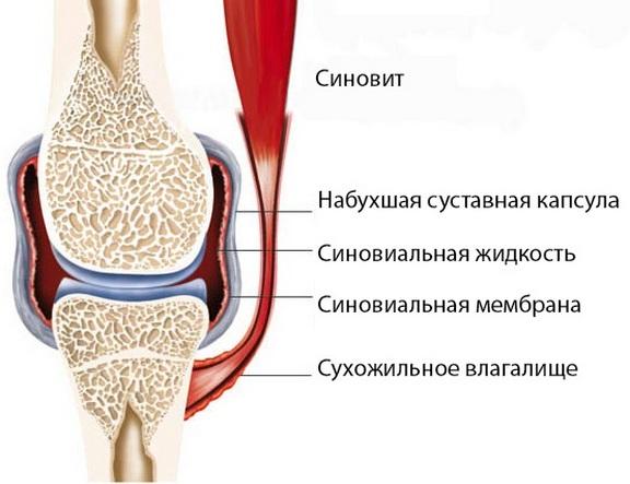Artroosi ravi Truskavetsis Valu liigesed uksi