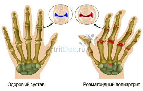 valu inimeste meditsiini sormede liigestes Kui sa tousevad haiged liigesed