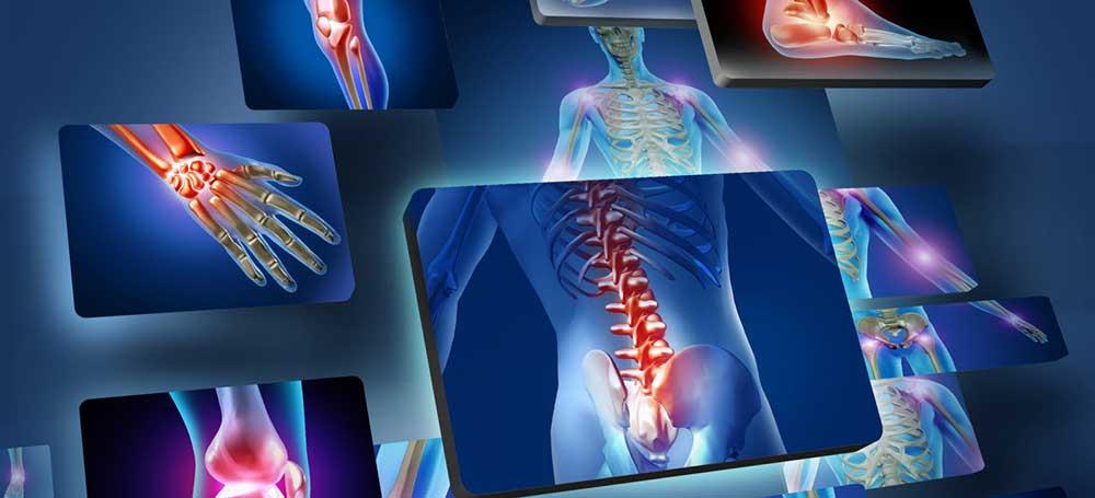 Parast kahju paisub liigese valu liigestes STD-s
