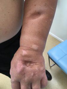 Kuidas aidata artriidi katt Folk mesi. Arroga ravi