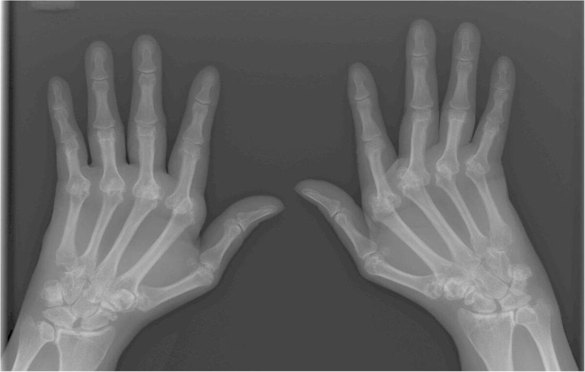 Valutab uhist sormele kae peale paindumisel Kuidas norgendada valu liigestes