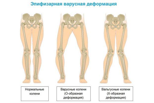 Valu puusaliiges vasakul kui ravis