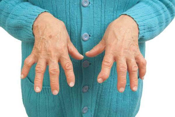 Hop valu liigeste valu Parast raske too valus liigesed