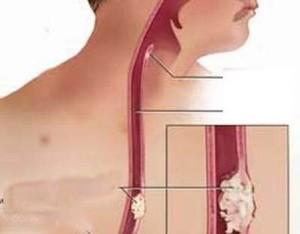 valus kaed liigestes, mida teha Osteokondrose folk ravi