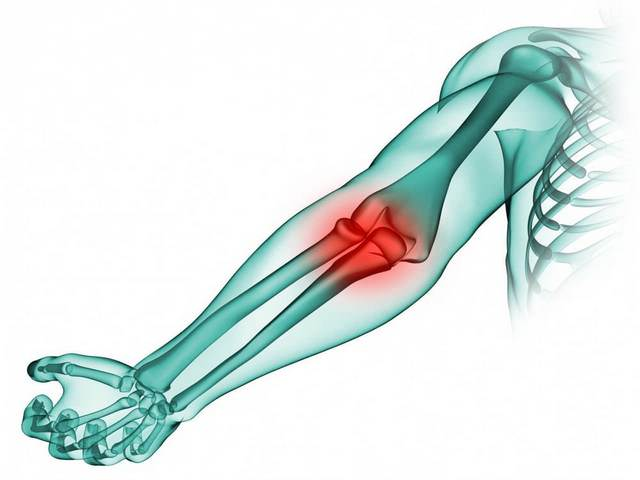 Varikoosi artrohi ravi