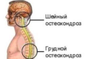 Mis soojendavad salvid osteokondroosi ajal Juudi liigesed haiget
