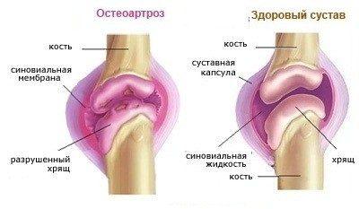 Mida niisutada liigesed artroosi ajal Vitamiinide artroosi ravi