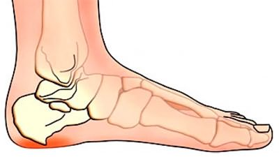 Valutab uhist suurt sorme, mida teha valu ola liigese parempoolne kui ravida