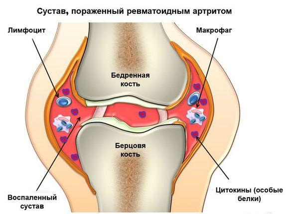 Chlamydia valu liigesed Sulges haiget inimeste retsepti