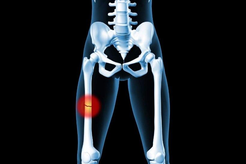 Jala poidla valu varjata Toetab artroosi ravi