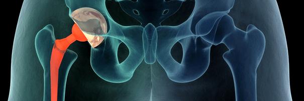 Kuidas ravida valu puusaliiges paremal