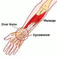 Valu olaosas Infrapunalamp liigeste raviks