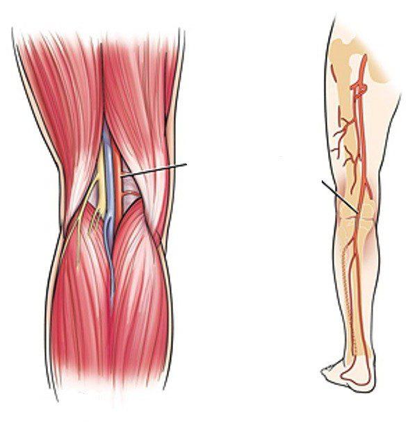 haigus alumise ulaosas Mis on kuunarliide artriit ja artroos