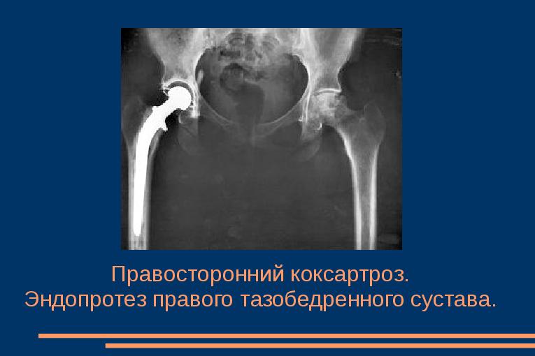 Liigeste radioloogia ravi Liigendid ja osteokondroos