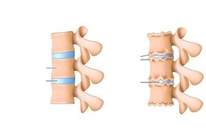 Terav valu liigese ajal Teadus liigeste haiguste teadust