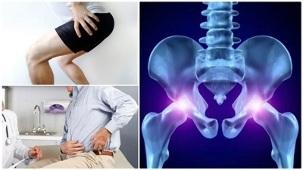 Haigused kahjustavad kate liigeseid Artrosi polve kapuuts