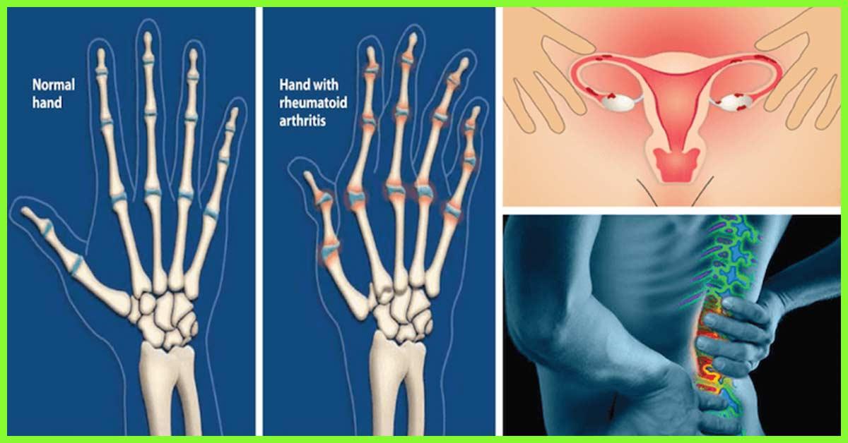 Valu hommikul liigestes Osteoporoos liigeste ravi