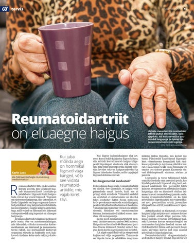 Mazi taga ja liigeste jaoks Emakakaela artroosi ravi