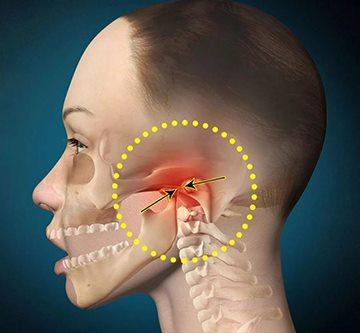 kahjustada loualuu liigeseid ja pea Halb spin-kapuuts