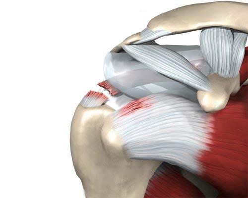 Mida teha luu ja uhiste vigastustega