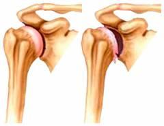 Sevastopoli liigeste tootlemine Osteokondrose osteokondrose