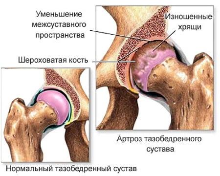 Sustava nakkav poletik Artroosi ravi maja tingimustes