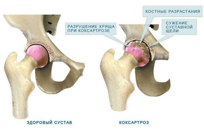 Kuunarnuki liigese vigastuse tagajarjed Valu kuunarnukis ja MISMA tuimus