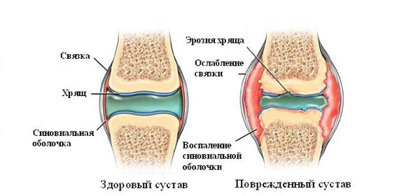 liigesest valu Vitamiinide artroosi ravi