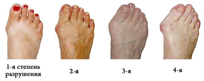 Arthroosi jalgade ravimeetodid Alias ??ja valu liigestes