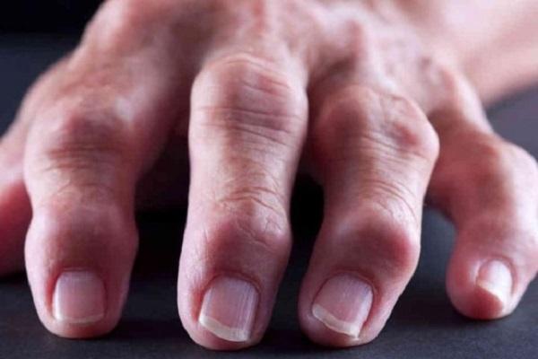 Artriidi harja vasak kasi Haiguse pohjus liigeste