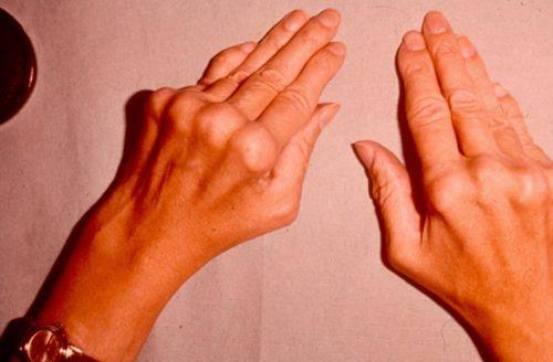 Artriit sormede harjadel