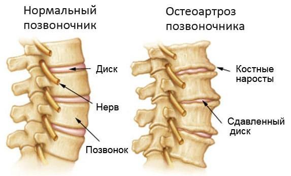 Osteokondroos jalad folk oiguskaitsevahendite ravi