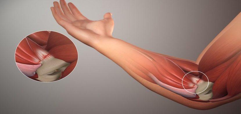 Artroosi ravi sees Pusiv valu punased laigud