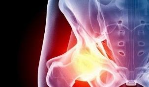 Artroosi valesti ravi Pre-liigese jala liigeste ravi