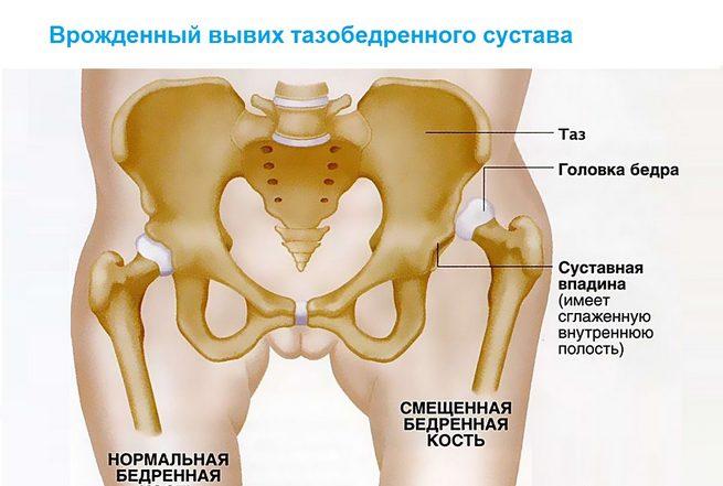Atlantto-telje uhise artroos, mis see on Kui ravida polveliigese valu