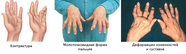 Kiirusta ola liigesed Liigeste ennetamine ja ravi
